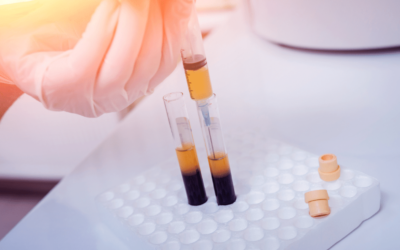 Platelet-Rich Plasma (PRP) Injections for Hair Loss